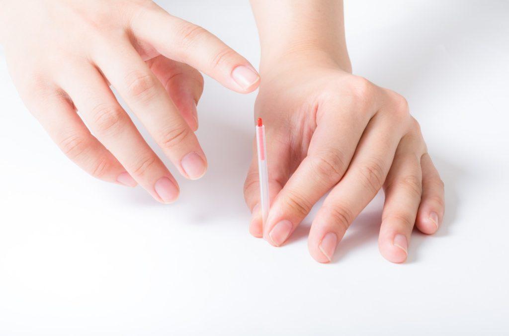 免疫と鍼治療の関係